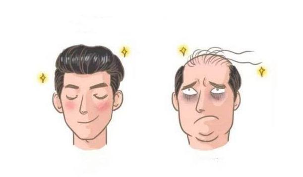 90后的视界中假发片成为快速且有效的物理治疗头秃的关键